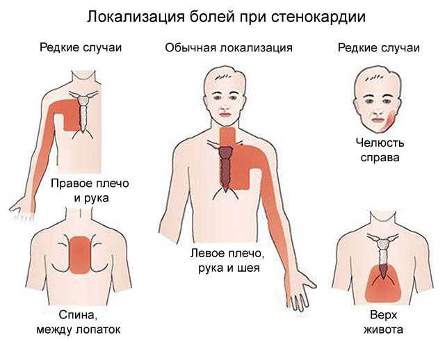 Жжение в области сердца: причины у женщин и мужчин, что значит, что делать, что принять, признаки, чем снять, после стресса, в левом боку