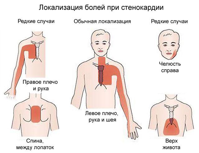локализация болей при стенокардии