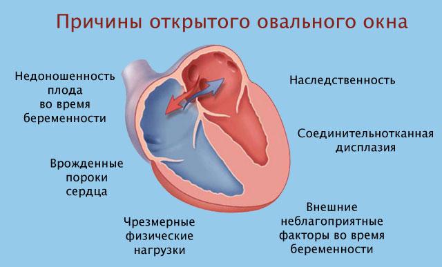 причины открытого овального окна сердца