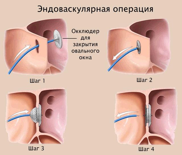 эндоваскулярная операция по закрытию овального окна в сердце