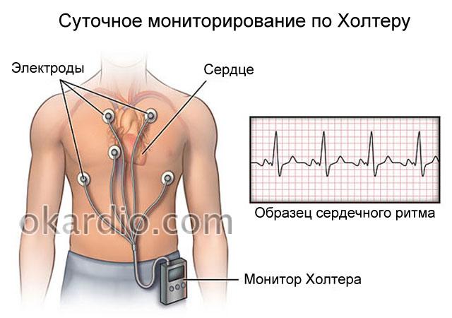 процедура холтеровского мониторирования