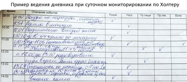 пример дневника при холтеровском мониторировании