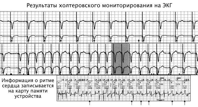 результат холтеровского мониторирования на ЭКГ
