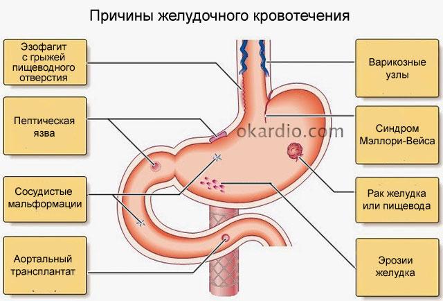причины желудочного кровотечения из-за болезней желудочно-кишечного тракта