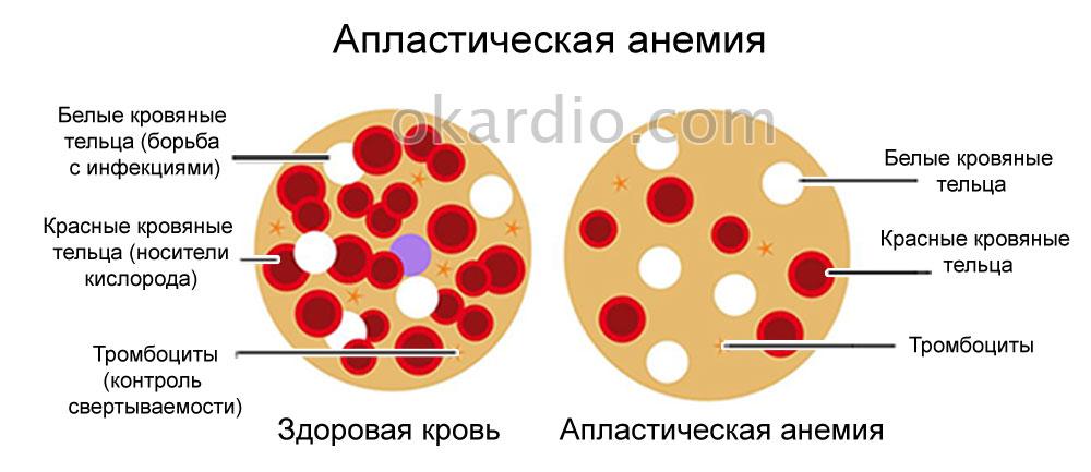 Желудочное кровотечение: его виды, симптомы, лечение и прогноз