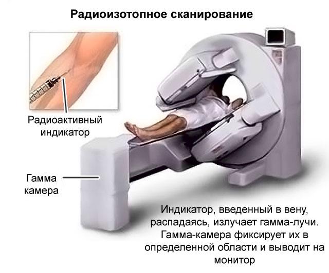 радиоизотопное сканирование