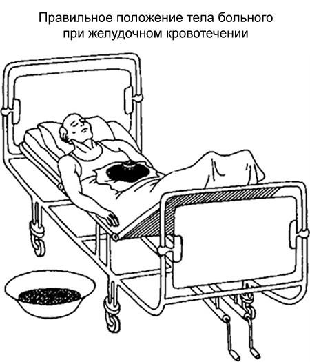 правильное положение больного при желудочном кровотечении