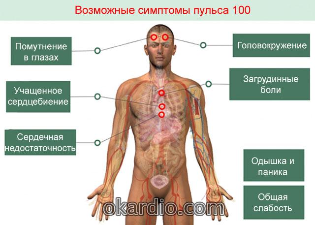 Пульс 100 ударов в минуту: что делать, причины, симптомы