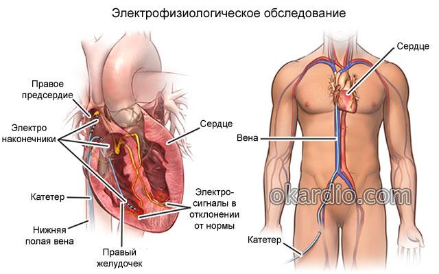 электрофизиологическое обследование