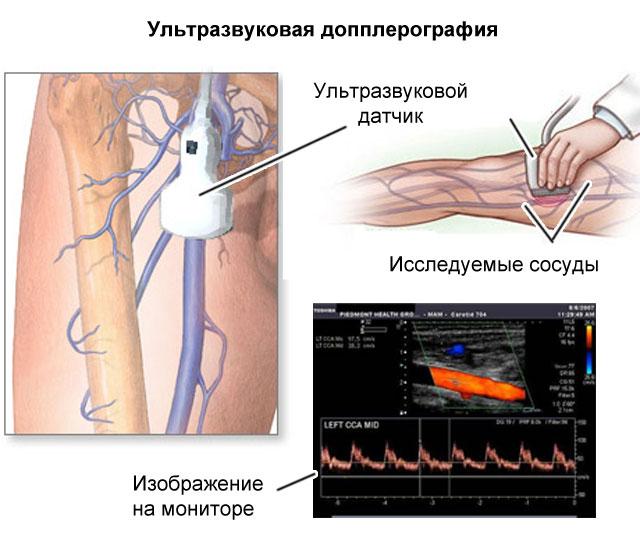 допплеровское сканирование вен