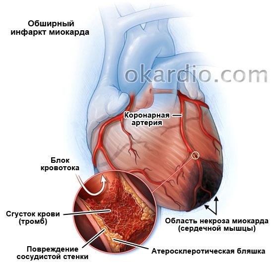 Обширный инфаркт: причины, симптомы, осложнения и лечение