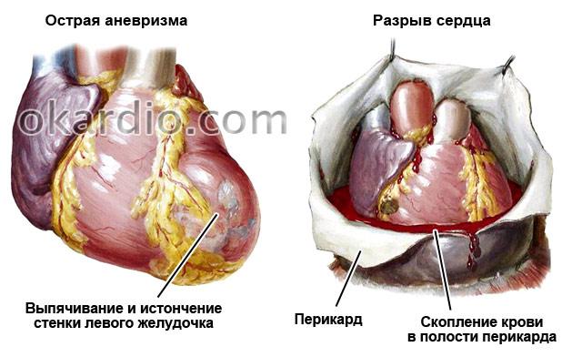 острая аневризма и разрыв сердца