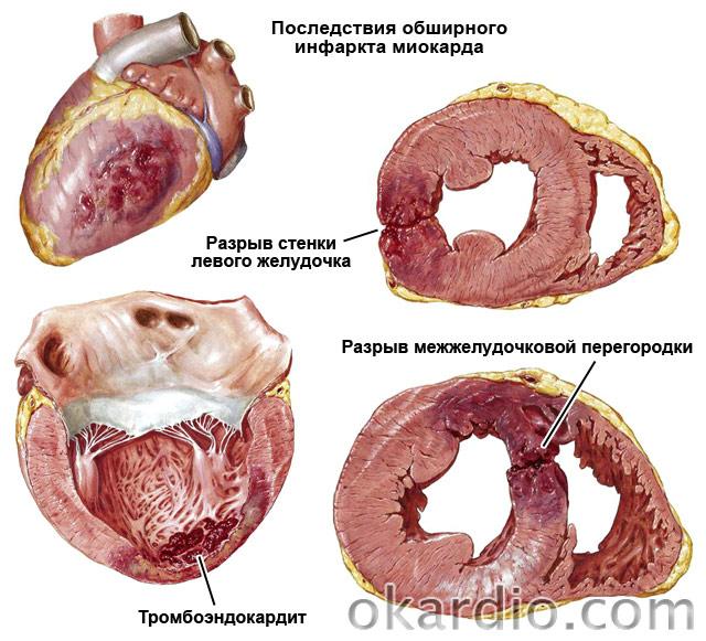 последствия обширного инфаркта миокарда