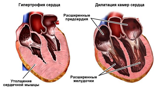 гипертрофия и дилатация камер сердца