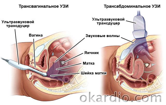 цистит трансвагинальное узи
