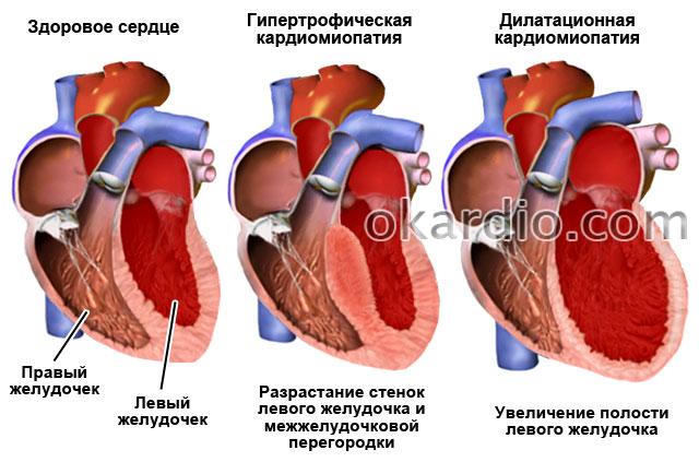 гипертрофическая и дилатационная кардиомиопатия