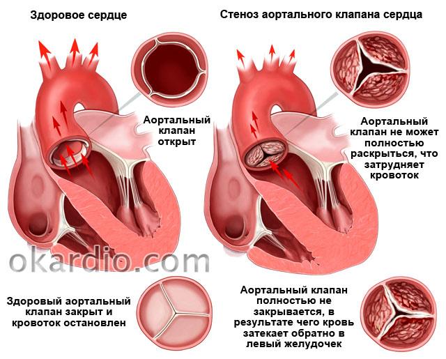 стеноз аортального клапана сердца