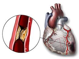 Заболевания сердца: симптомы, лечение, список главных недугов