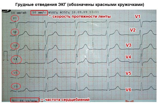 грудные отведения ЭКГ