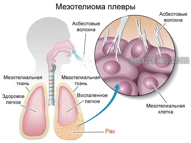 Рак сердца: симптомы, признаки, лечение и прогноз