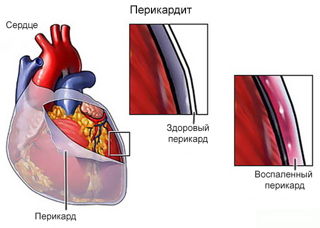 При выдохе боль в суставе саркоидоз поражение костей и суставов