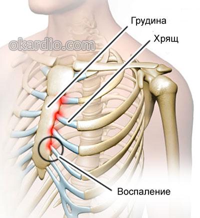 костохондрит