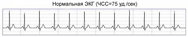 нормальная частота сердечных сокращений на ЭКГ
