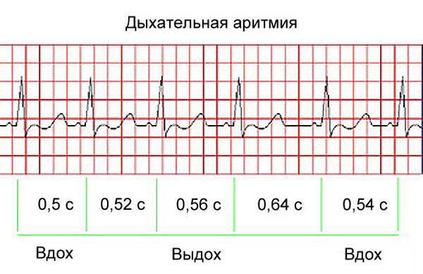 дыхательная аритмия на ЭКГ