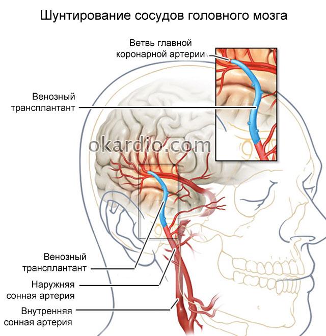 шунтирование сосудов головного мозга