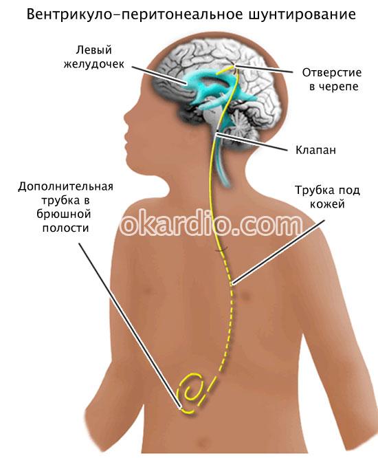 вентрикуло-перитонеальное шунтирование
