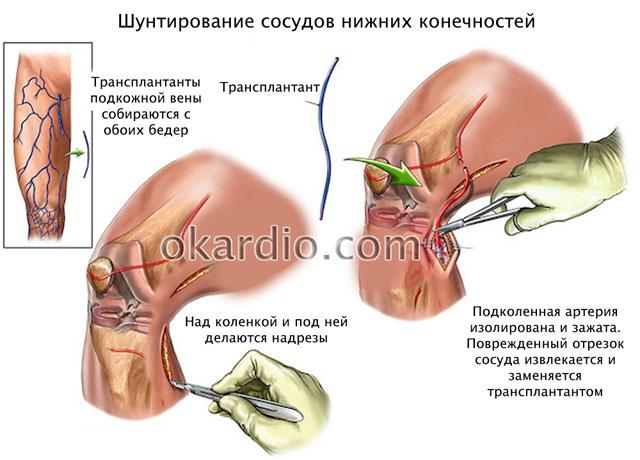 операция шунтирование сосудов нижних конечностей