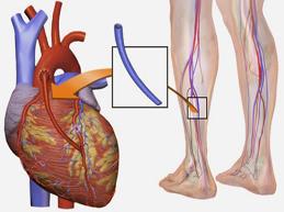 шунтирование коронарной артерии трансплантантом