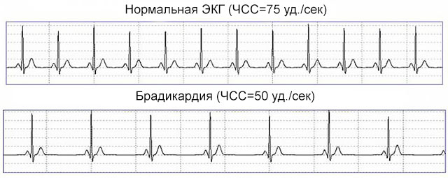 сравнительные ЭКГ при нормальном ЧЧС и брадикардии
