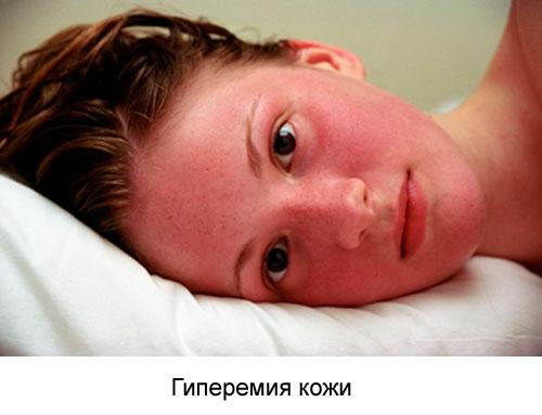 Гиперемия кожи: что это такое, причины, виды, симптомы и лечение
