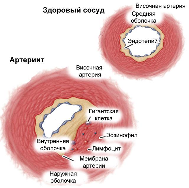 артериит