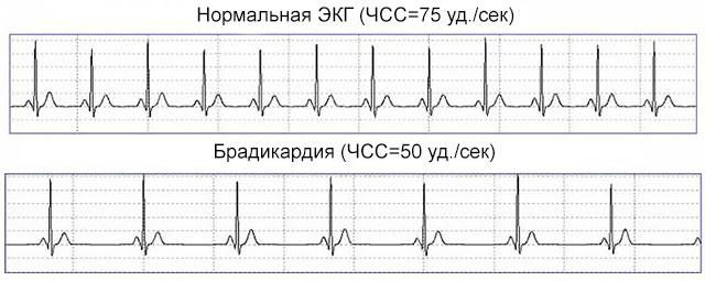 Пульс 50 ударов в минуту при повышенном давлении