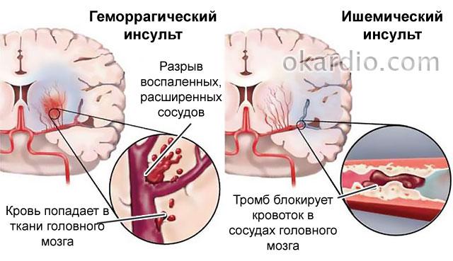 две разновидности инсульта