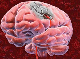 От чего бывает инсульт: причины ишемического и геморрагического