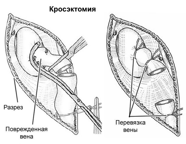 кросэктомия