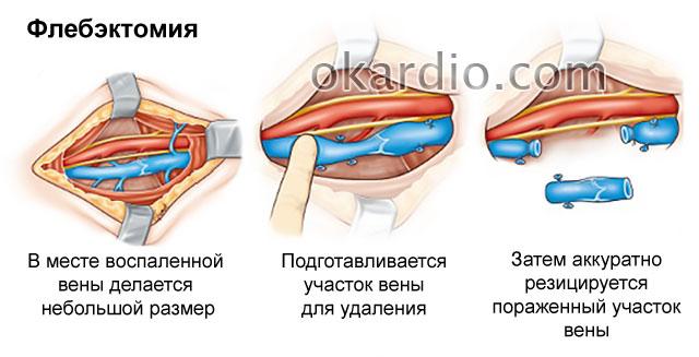 флэбектомия