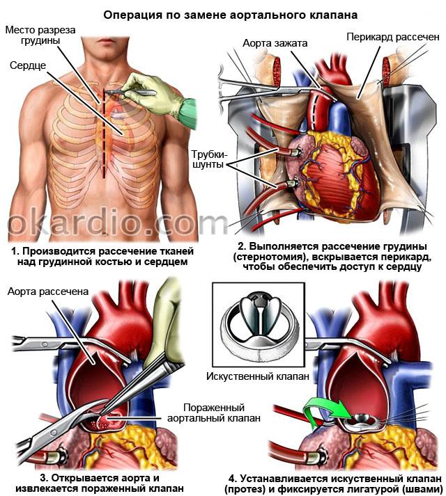 операция по замене аортального клапана