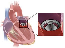 Как проводят операцию по замене клапана на сердце: полный обзор
