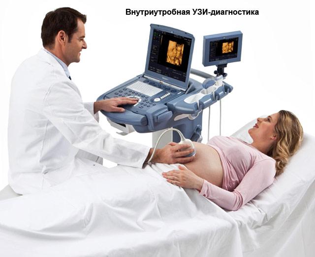 внутриутробная УЗИ-диагностика