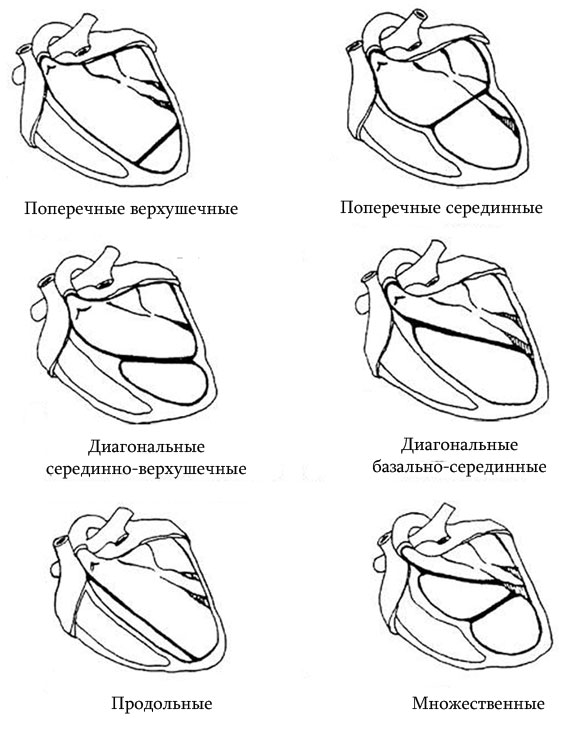 схематичное изображение вариантов дополнительных хорд в сердце