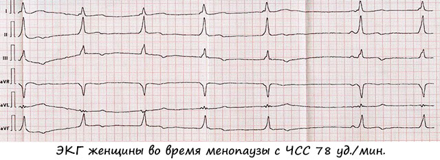пример ЭКГ женщины во время менопаузы с ЧСС 78 ударов в минуту