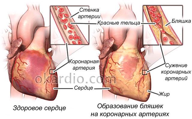 атеросклеротические бляшки в коронарных артериях
