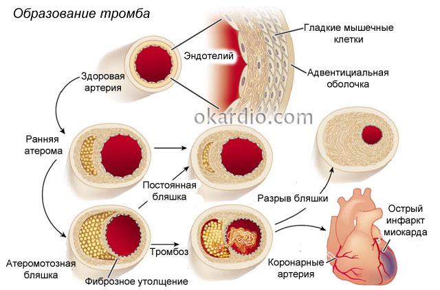схема образования тромба, вызывающего ОКН
