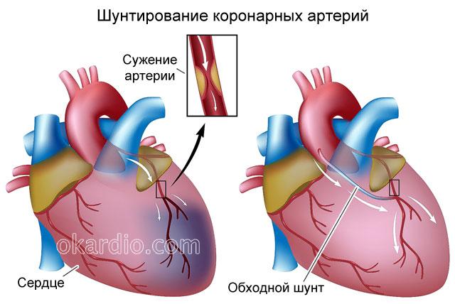 шунтирование коронарных артерий