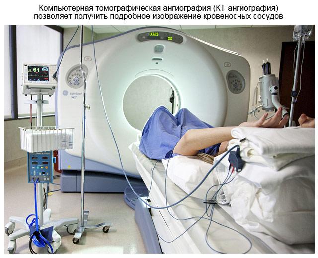 компьютерная томографическая ангиография