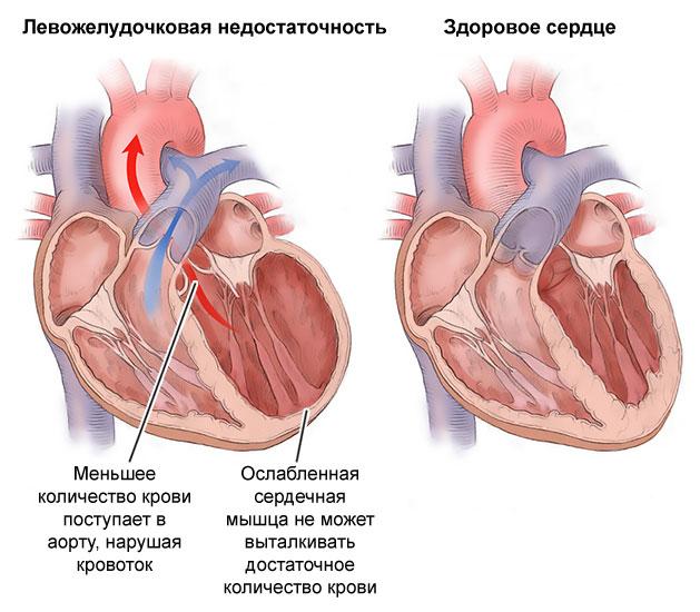 Левожелудочковая сердечная недостаточность : симптомы, признаки, диагностика и лечение